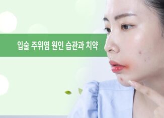 입술 주위염 원인