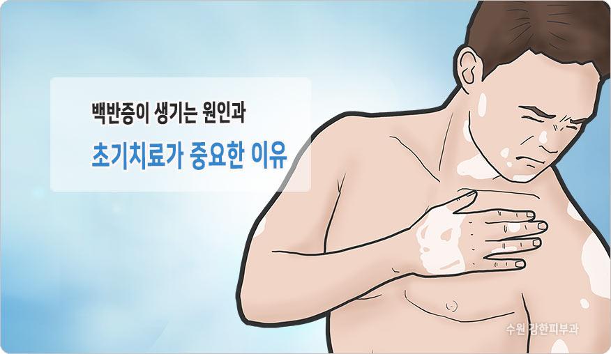 번지는 백반증 특징