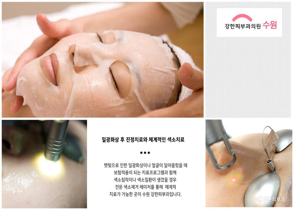 수원 일광화상 치료