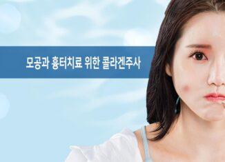 모공과 흉터치료