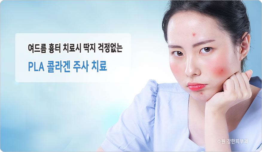 수원 패인 모공과 흉터치료
