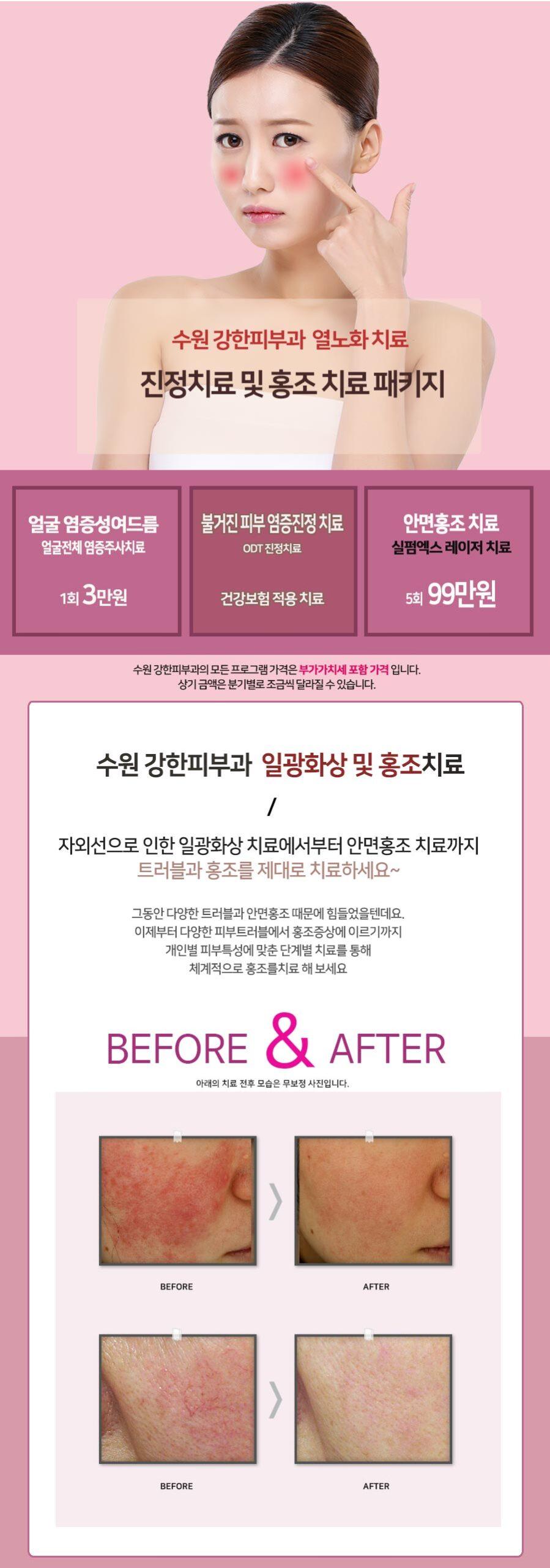 수원 열노화 진정치료