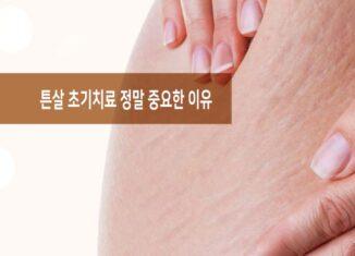 튼살 초기치료 중요성
