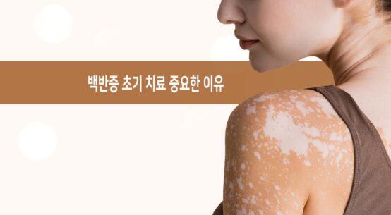 백반증 초기 치료