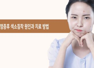 염증후 색소침착 치료